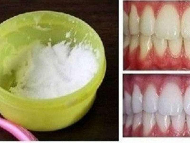 Bëni dhëmbët super të bardhë në shtëpi