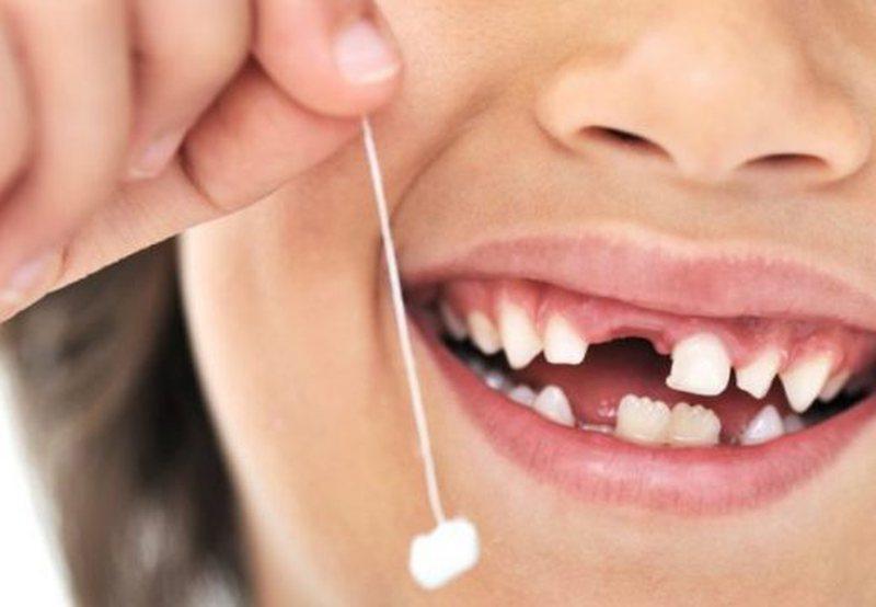 Kurrë mos i hidhni dhëmbët e qumështit të