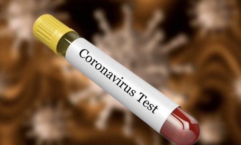 I shfaqen simptomat e koronavirusit, habit modelja e njohur me postimin: Nuk ma