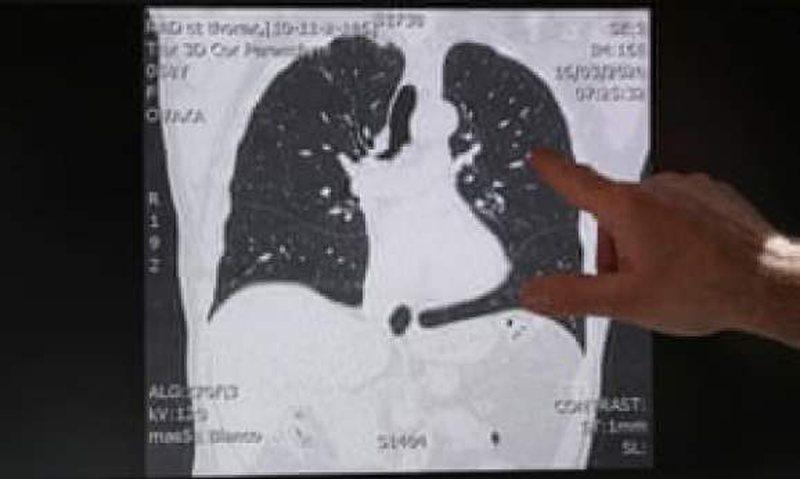 Covid-19 godet rëndë traktin respirator/ Ja çfarë i ndodh