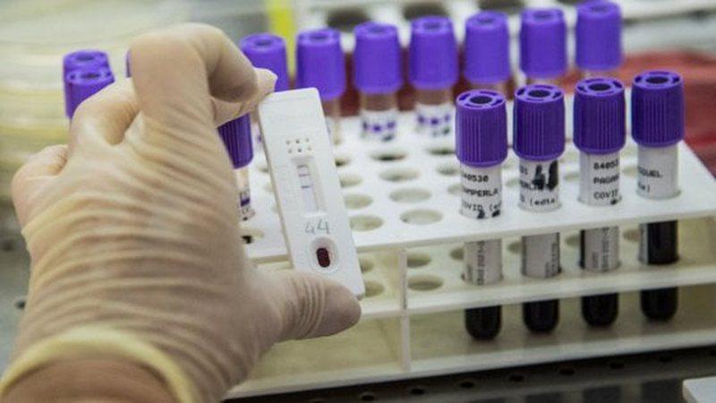 Shpërthen keq koronavirusi në Rajon, nuk mbetet pas as Serbia për