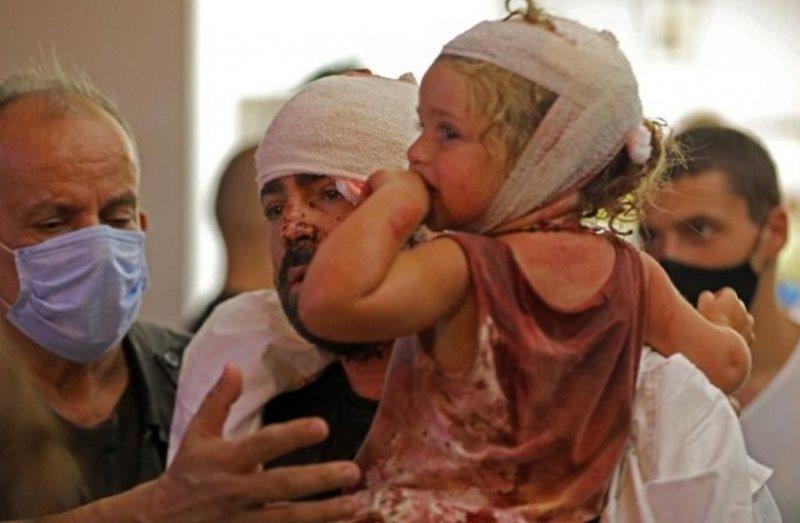 Kryqi i Kuq libanez nxjerr shifrat e frikshme: Ja sa persona janë plagosur