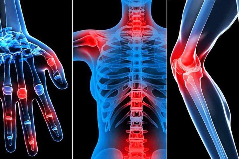 Keni dhimbje kockash? Mësoni arsyet nga se shkaktohen dhe ushqimet që