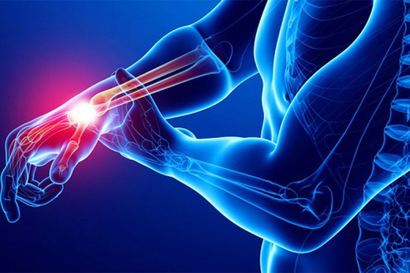 Do not ignore / The first symptoms of rheumatism and arthritis, this is the risk