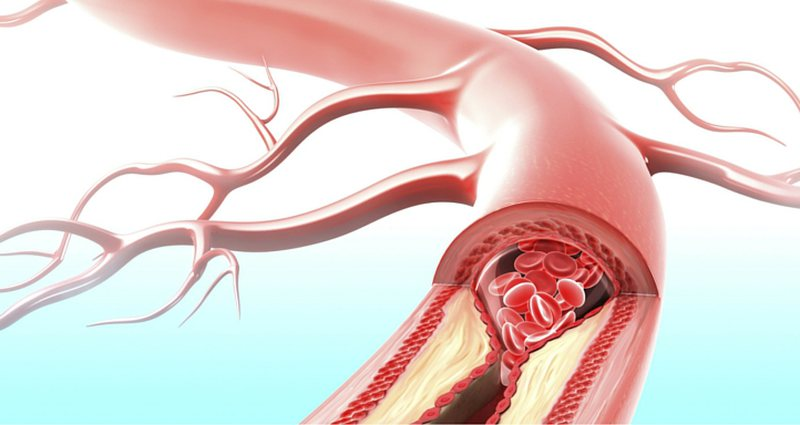 Enable better blood circulation and fight thrombosis, these are natural cures