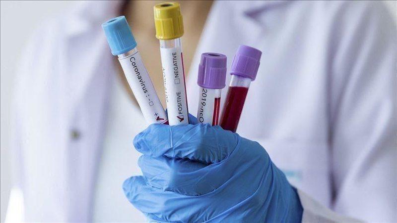 Greqia heq disa masa kufizuese ndaj koronavirusit