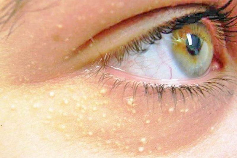 Iu shfaqen pika të bardha rreth syve? Zbuloni çfarë