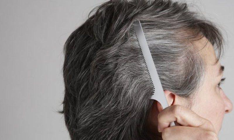 Bëni kujdes! Mësoni arsyet pse ju bien flokët