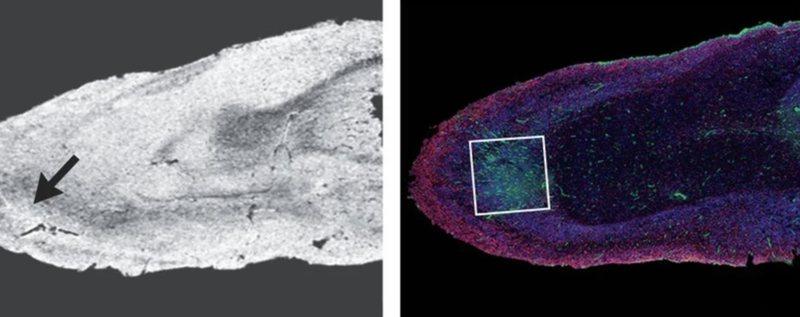 Çfarë shkakton Covid-19 në trurin e njeriut? Ja