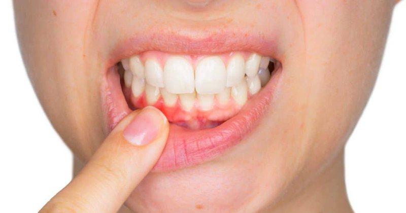 Shpëtoni nga dhimbja e dhëmbit, pa shkuar te dentisti
