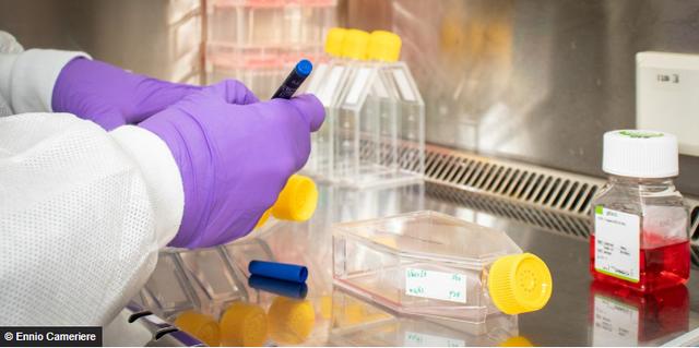 Pse në disa vende vdesin më shumë njerëz nga koronavirusi?