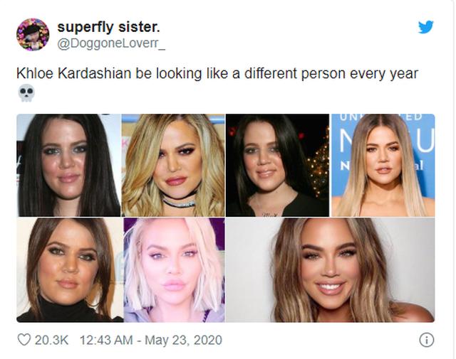Khloe Kardashian e ndryshon fytyrën për herë të shtatë