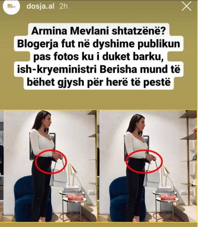 Armina reagon pas lajmeve të shtatzënisë