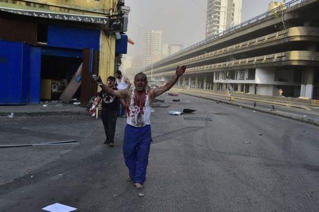 Situata horror në Bejrut! Mbi 3000 të plagosur nga shpërthimet,