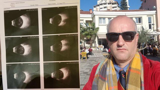 Humb betejën me koronavirusin pedagogu që mbeti i verbër nga