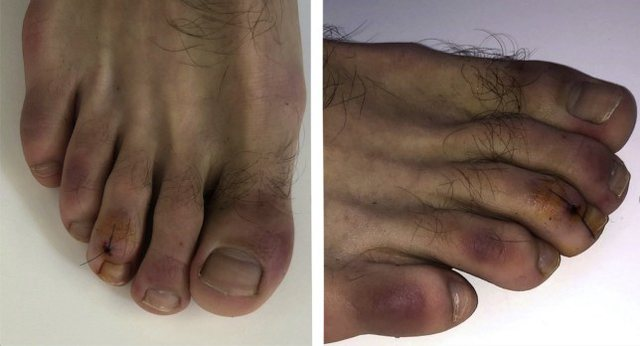Foto/ Ekspertët zbulojnë një tjetër simptomë që