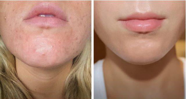 Sekreti i larjes së fytyrës për lëkurë të