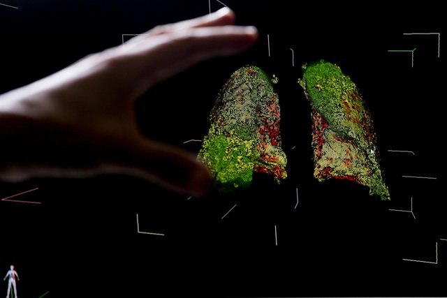 Shkencëtarët kinezë: Virusi e ka origjinën nga një