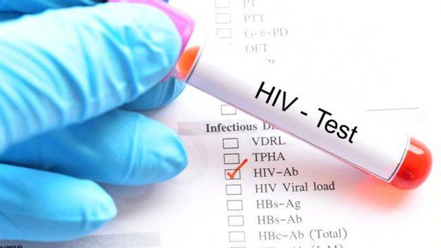 Dita Botërore kundër SIDA-s, Manastirliu: Është garantuar