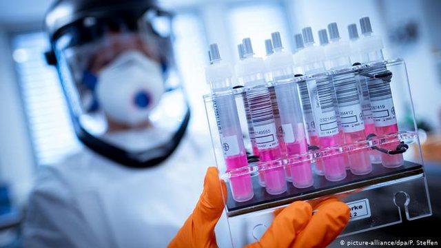 Hapet tenderi për blerjen e 400 mijë teste koronavirusi të
