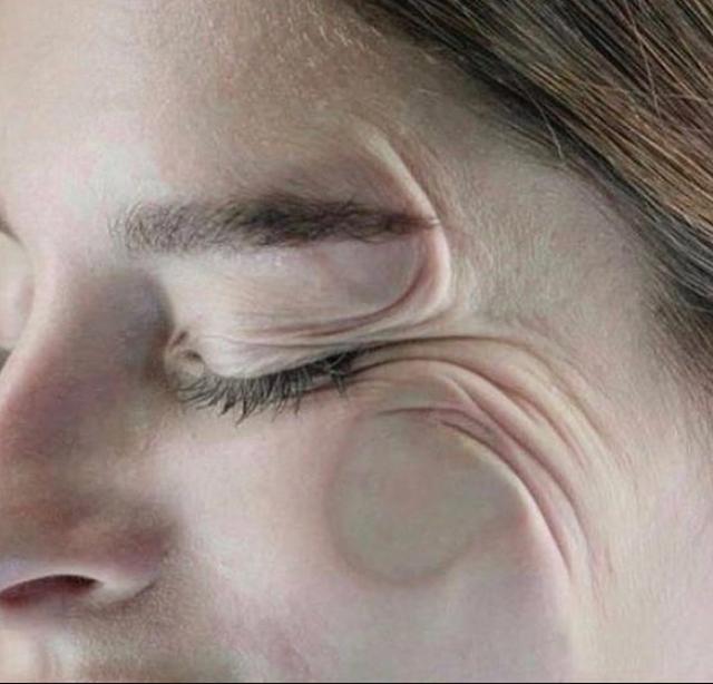 Provat e pakëndshme nga dermatologët se si pozicioni i gjumit shton