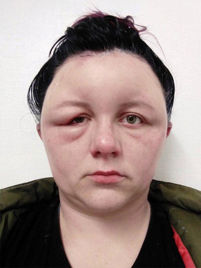 Foto/ 27 vjeçarja nga Anglia pëson reaksion të frikshëm