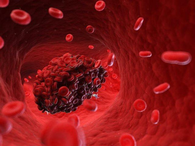 AstraZeneca, lidhja e mundshme me mpiksjen e gjakut dhe shenjat pas