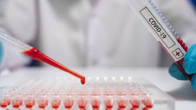 COVID-19/ Konfirmohen dy rastet e para të infektimit me variantin indian